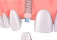 Danties implantas