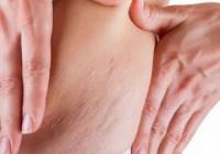 Strijų šalinimas dermatologijos klinikoje