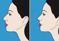 Nosies korekcija