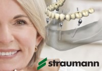 Su Straumann implantais